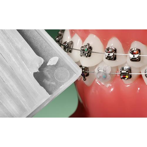 Ortodontinis vaškas